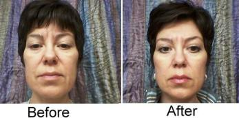 before and after Fyola facial treatment